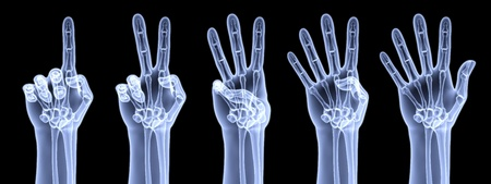 counting: the human hand shows the number of fingers under the X-rays Stock Photo