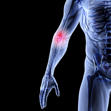 arm pain: Man Stock Photo