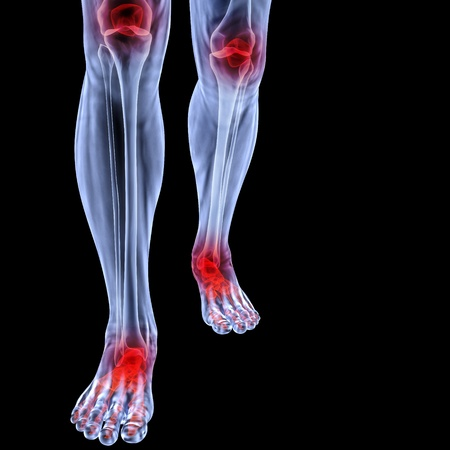 foot pain: Human feet under X-rays. joints are shown in red. isolated on black.