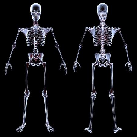 人間の骨格の x 線の下で。黒に分離されました。