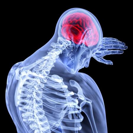 nerveux: un homme avec un mal de tête sous x-ray.