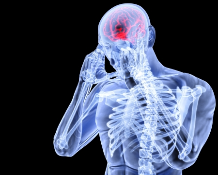 x ray image: a man with a headache under x-ray.