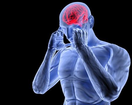 een man met een hoofdpijn onder X-ray. Stockfoto