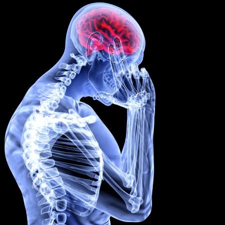 organos internos: un hombre con un dolor de cabeza en la radiografía. Foto de archivo