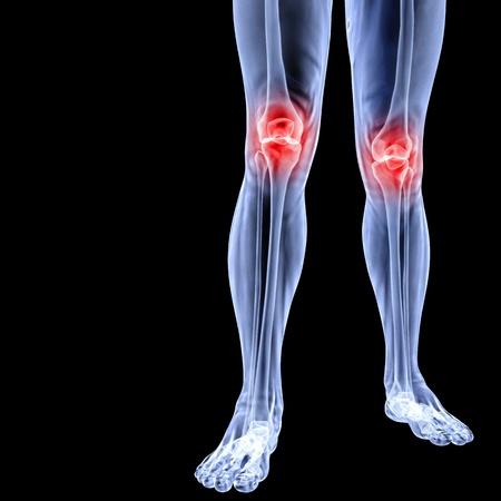 X 線の下で人間の足。接合箇所は赤で示されます。黒に分離されました。