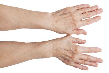 tendones: Las manos de un anciano sobre un fondo blanco