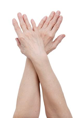 osteoarthritis: Mani di una donna anziana su sfondo bianco