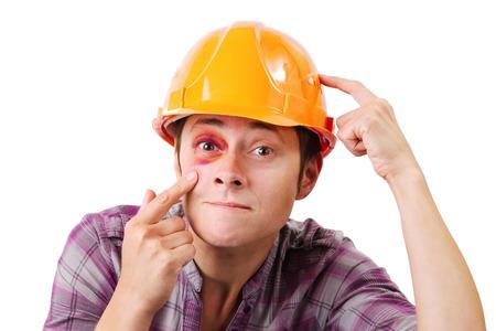 hematoma: Girl with a black eye in an orange helmet