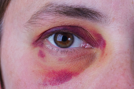 contusion: Human eye with a large purple bruise