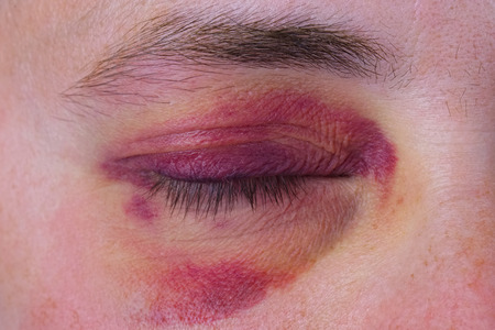 carelessness: Human eye with a large purple bruise
