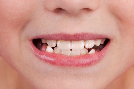 Detail of the face of a child with an open mouth and teeth