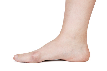 flatfoot: Human foot with hallux valgus on white bacground
