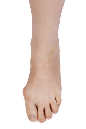 barefooted: Leg with deformed joint on a white background