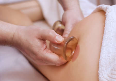 The masseur makes massage with jars of cellulite on the buttock and thighs of the patient. Treatment of excess weight. Stock Photo