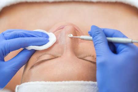 Procedure voor het reinigen van de huid van het gezicht met een stalen apparaat met een lepel van mee-eters en acne.