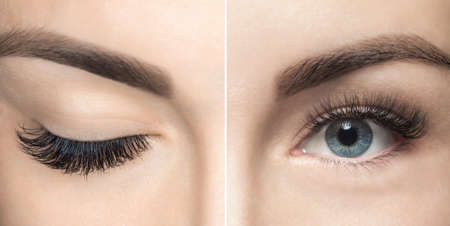 Eyelash removal procedure close up. Beautiful Woman with long lashes in a beauty salon. Eyelash extension. Foto de archivo