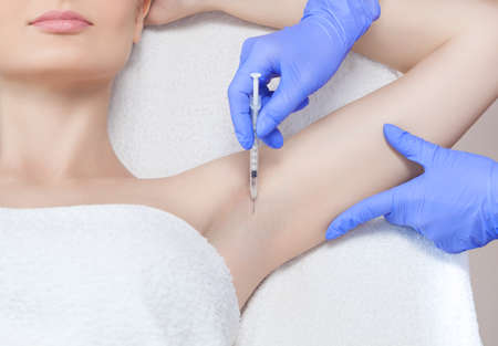The doctor makes intramuscular injections of botulinum toxin in the underarm area against hyperhidrosis. Stock Photo