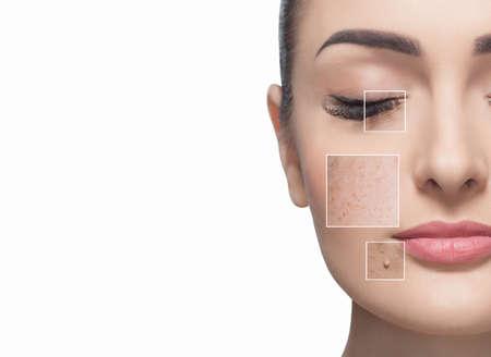 Porträt einer schönen Frau auf einem weißen Hintergrund, auf dem Gesicht sind sichtbare Bereiche der Problemhaut - Falten und Sommersprossen. Kosmetikkonzept.