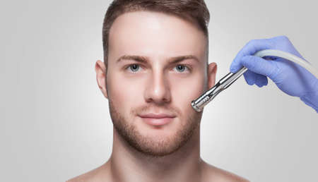 A cosmetologist is making the procedure Microdermabrasion of the facial skin in a beauty salon. Cosmetology for men and professional skin care. Standard-Bild - 131698824