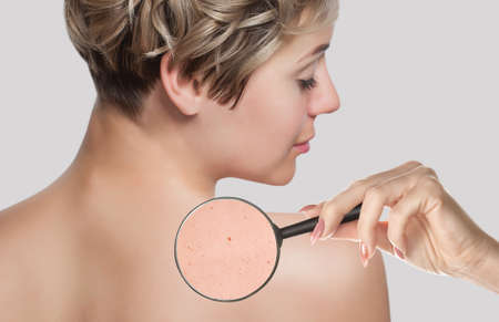 On the woman's back, the doctor examines a problem skin area with a magnifying glass.