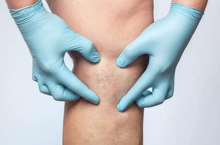 il medico mostra la dilatazione dei piccoli vasi sanguigni della pelle sulla gamba. Ispezione medica e trattamento delle teleangectasie, cosmetologia Archivio Fotografico