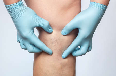 le médecin montre la dilatation des petits vaisseaux sanguins de la peau sur la jambe. Inspection médicale et traitement des télangiectasies, cosmétologie Banque d'images