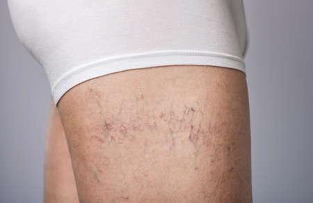 die Erweiterung der kleinen Blutgefäße der Haut am Bein. Ärztliche Untersuchung und Behandlung von Teleangiektasien.