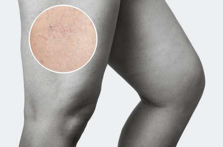 La dilatation des petits vaisseaux sanguins de la peau sur la jambe. Inspection médicale et traitement des télangiectasies, cosmétologie