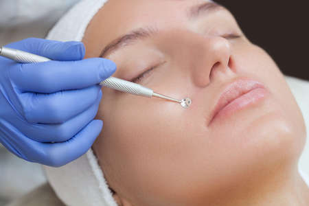 Beautician cleanses the skin on the face from acne and blackheads on the woman's face in a beauty salon.Treatment of problem skin cosmetology concept.