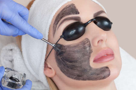 A woman with a carbon mask on her face, a beautician does laser carbon peeling on the problem areas of the skin of a young beautiful girl. Hardware cosmetology.