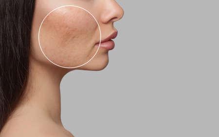 Foto antes y después del tratamiento para el acné. Una niña con problemas de piel. Tratamientos para la piel. Cosmetología y cuidado profesional de la piel.