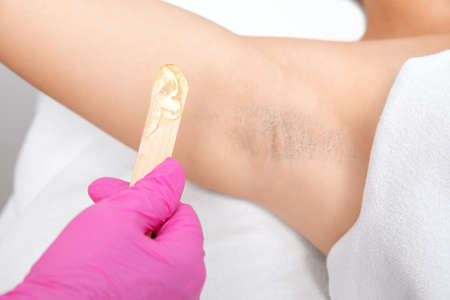 The cosmetologist does laser hair removal on the armpits, she applies the gel to the skin. Laser hair removal and cosmetology. The concept of cosmetology and spa. Archivio Fotografico