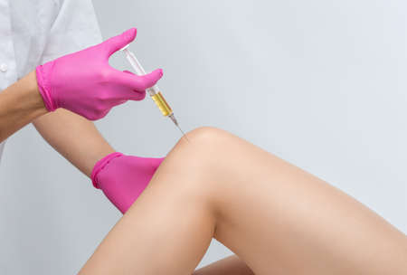 Doctor doing stem cell therapy on a patient's knee after the injury. Treating knee pain with platelet-rich plasma injection. Treatment of arthritis and osteoarthritis.Medical and cosmetology concept. Reklamní fotografie