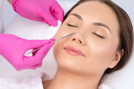 A procedure for cleansing the skin of the face from blackheads and acne. Cosmetologist treats problematic skin of a young woman's face in a beauty salon. Aesthetic cosmetology and makeup concept. 写真素材