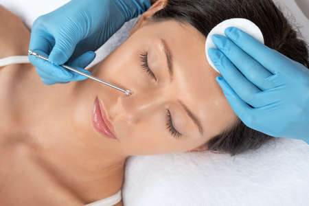 A procedure for cleansing the skin of the face from blackheads and acne. Cosmetologist treats problematic skin of a young woman's face in a beauty salon. Aesthetic cosmetology and makeup concept. Stock Photo