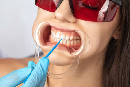 The dentist makes a teeth whitening procedure in the clinic to a young beautiful woman. A healthy smile.