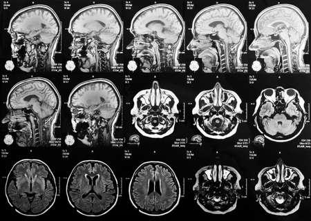 Rezonans magnetyczny mózgu Zdjęcie Seryjne