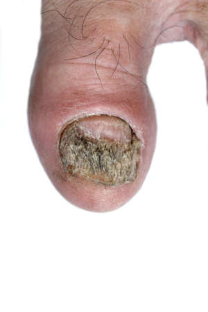 Sore toenail photo