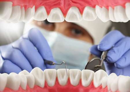 dentist checkup teeth, Inside mouth view Stock Photo