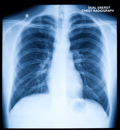 human lungs: X-Ray Image Of Human Healthy Chest