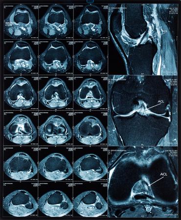 resonancia magnetica: Tomograf�a de resonancia (MRT) im�genes magn�ticas de rodilla