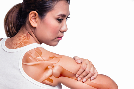 soreness: Asian woman with shoulder pain and see the arm bone. Stock Photo