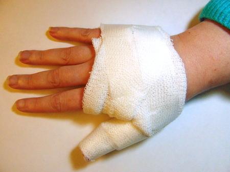 hand bandage Stock Photo