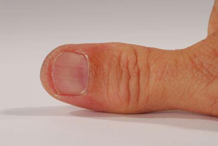 man's thumb: Macro of a working mans thumb