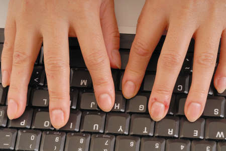 Bloody Fingers typing on a computer keyboard