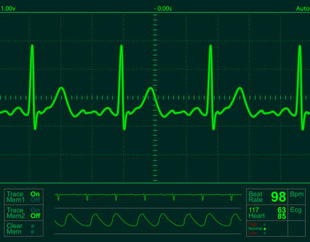 electrocardiogram: heart monitor screen with normal beat signal
