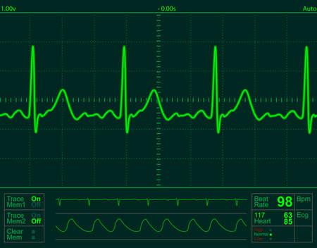 of electrocardiogram: pantalla del monitor de coraz�n con latido normal se�al  Foto de archivo