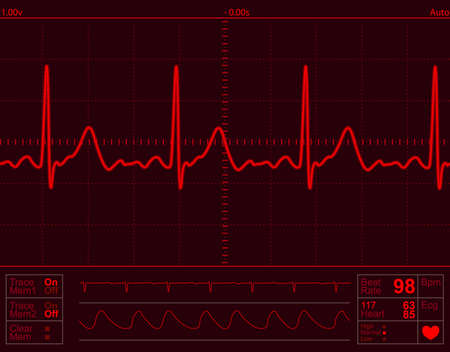 heart monitor screen with normal beat signal Stock Photo - 2880811
