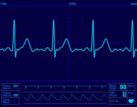 heart monitor screen with normal beat signal Stock Photo - 2919637