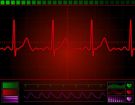 heart monitor screen with normal beat signal Stock Photo - 6267737